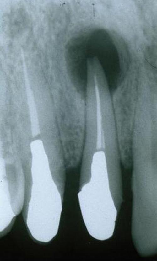 摘出 手術 嚢胞 歯根